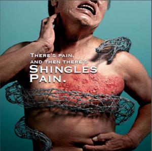 Shingles Vaccine - Respiratory Doctor - Singapore Lung ...