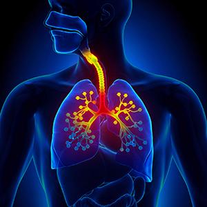 image_bronchitis